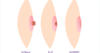 Nipple Shapes