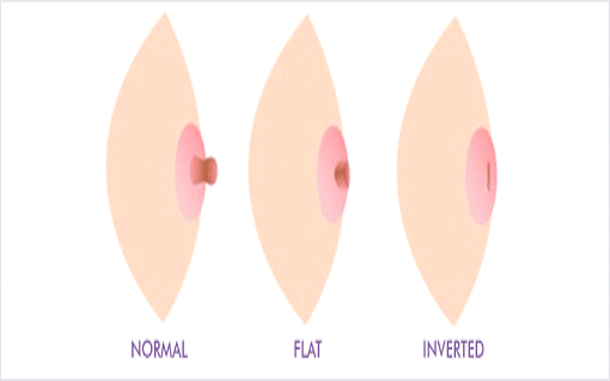 diferent shapes of breast